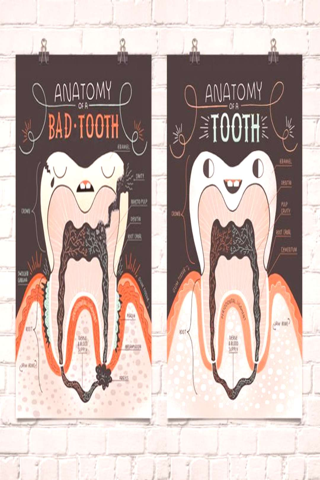 Anatomy of a Good Tooth and Bad Tooth Two Art print Set -