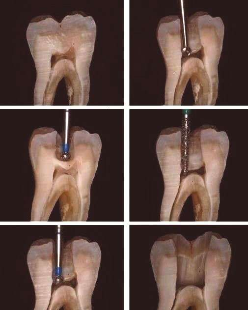Australian Dentist Funny Tooth Pics and Advice posted to Instagram Accessing the nerve chamber to