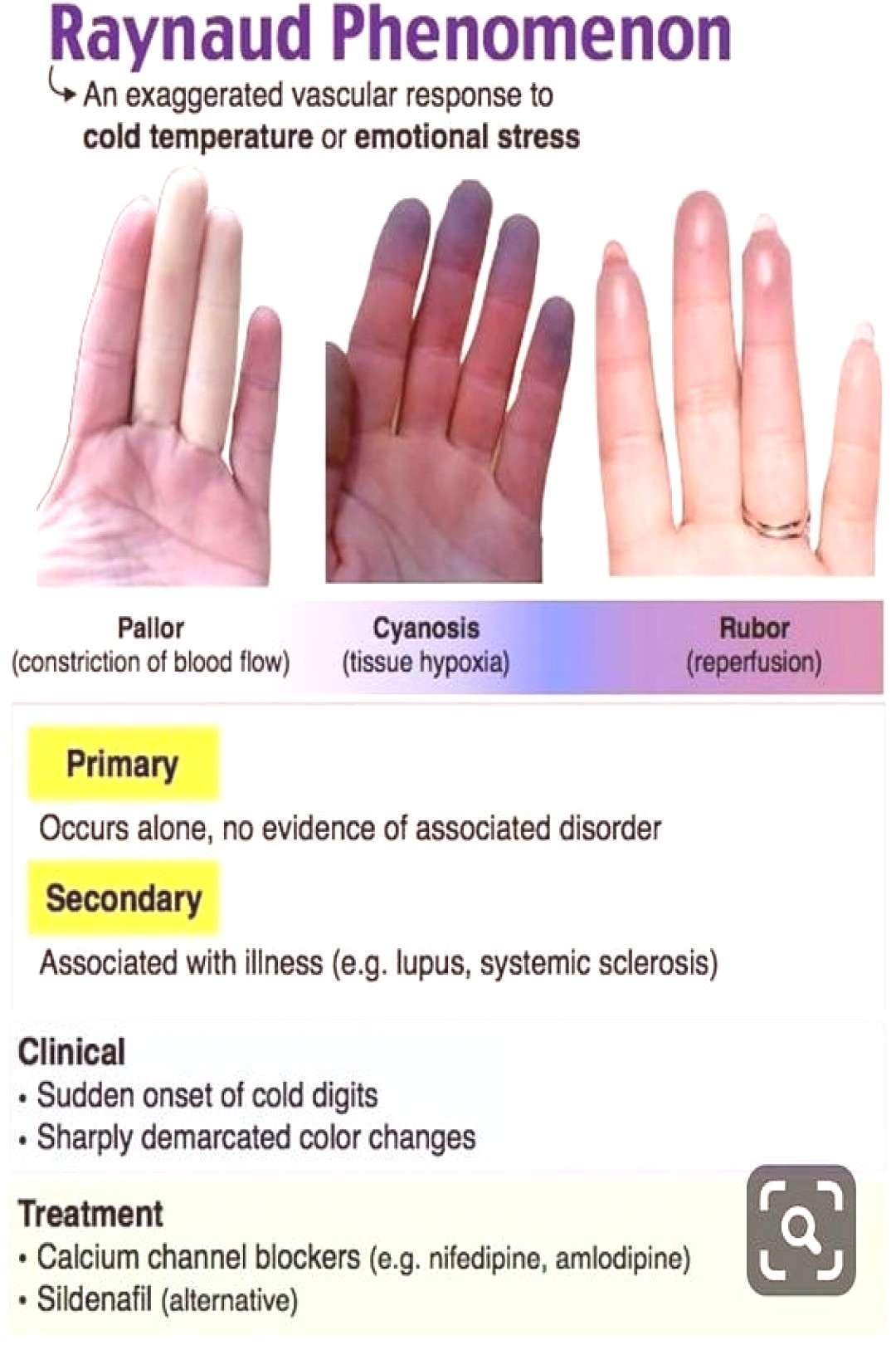 Raynauds disease is vasoconstrictive syndrome effects Ears, Nos